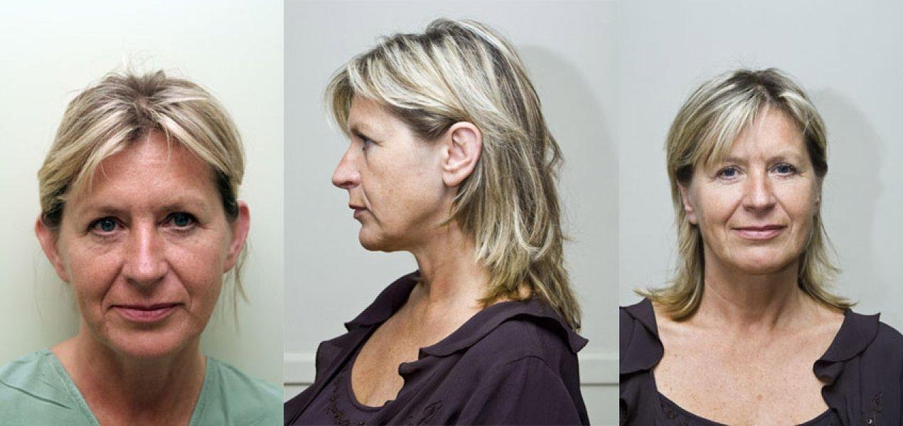 fotky před a po plastice uší