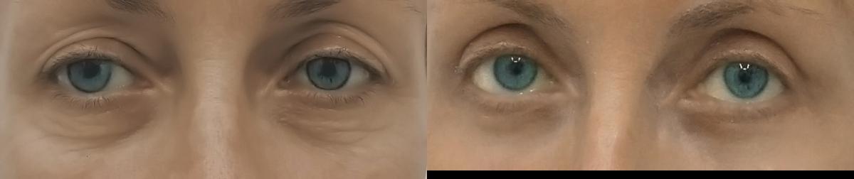 fotky před a po blefaroplastice (operaci očních víček)
