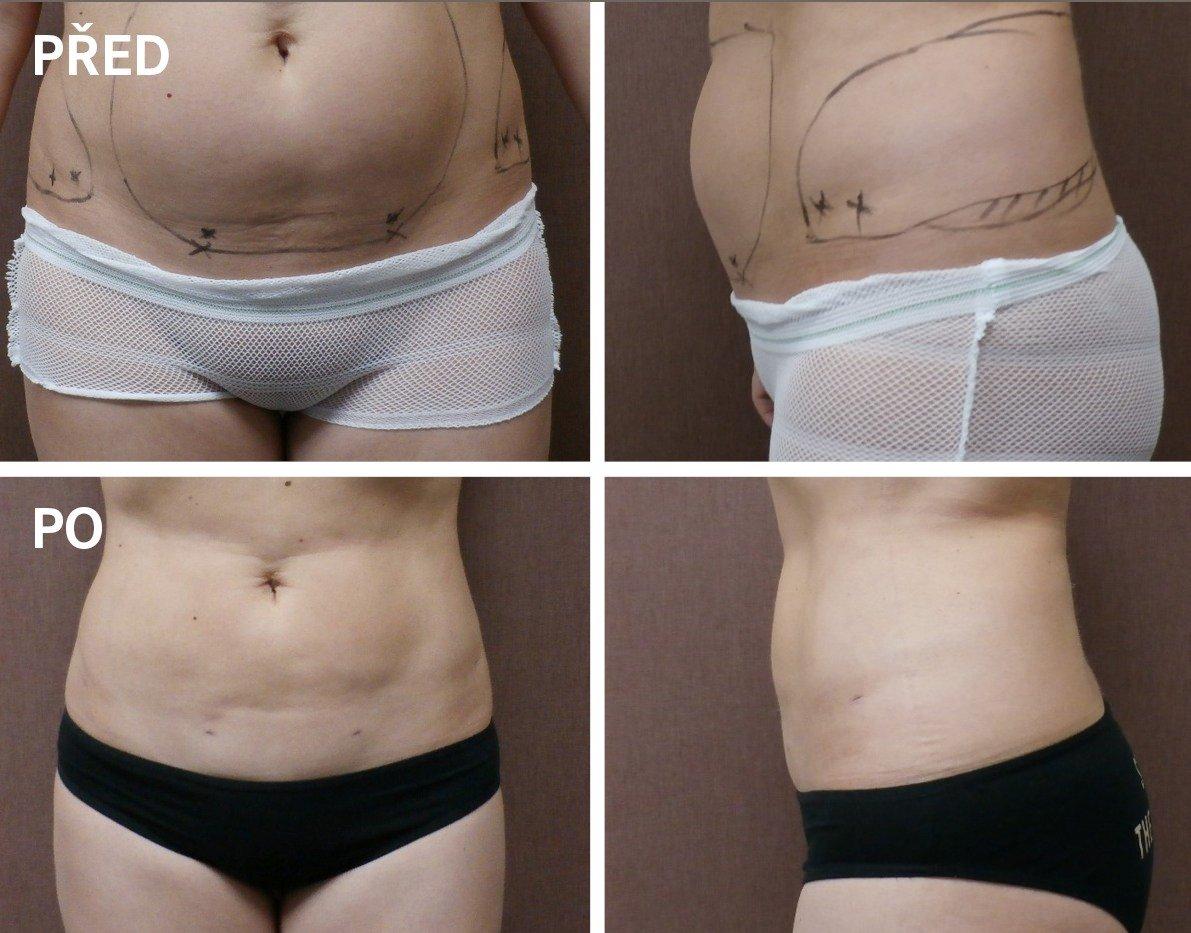 ambulantní liposukce před/po