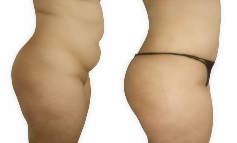 abdominal surgery before and after