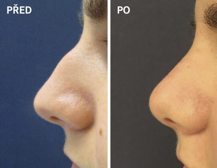 Plastic operation of the nose before/after