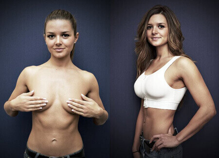 Before/after breast surgery