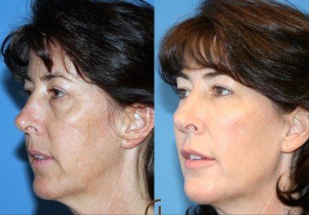 plazmaterapie foto před a po