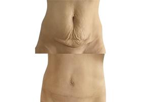 abdominoplastika před/po
