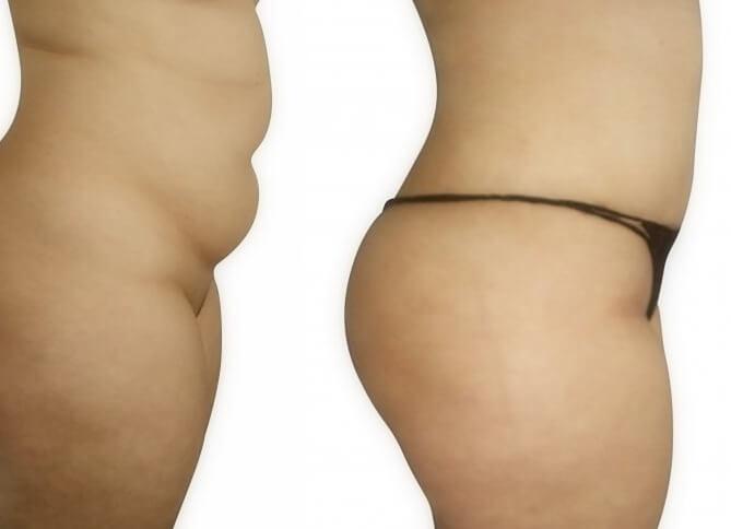 abdominoplasty gallery
