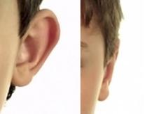 plastika uší před a po