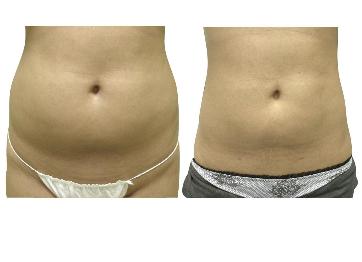liposukce před a po