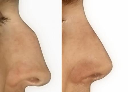 rhinoplastika před/po