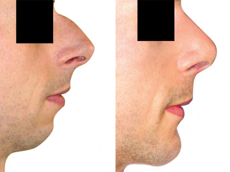 plastika brady před a po