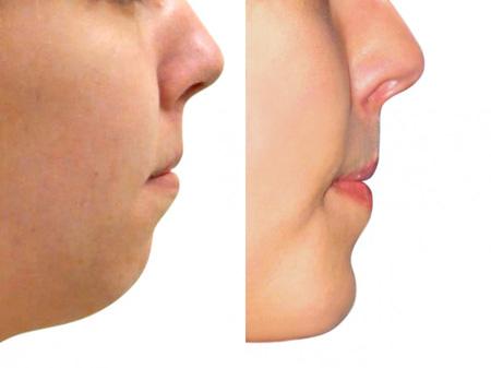 profiloplastika před a po