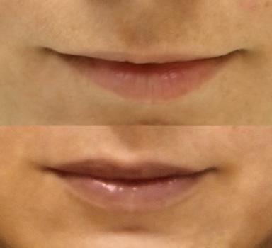 augmentace rtů foto před a po