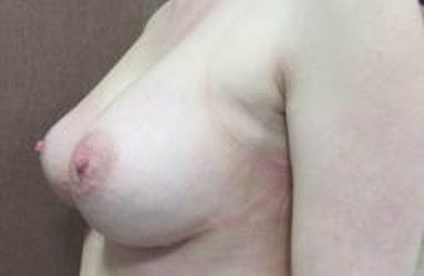 Zvětšení prsou - Zuzi