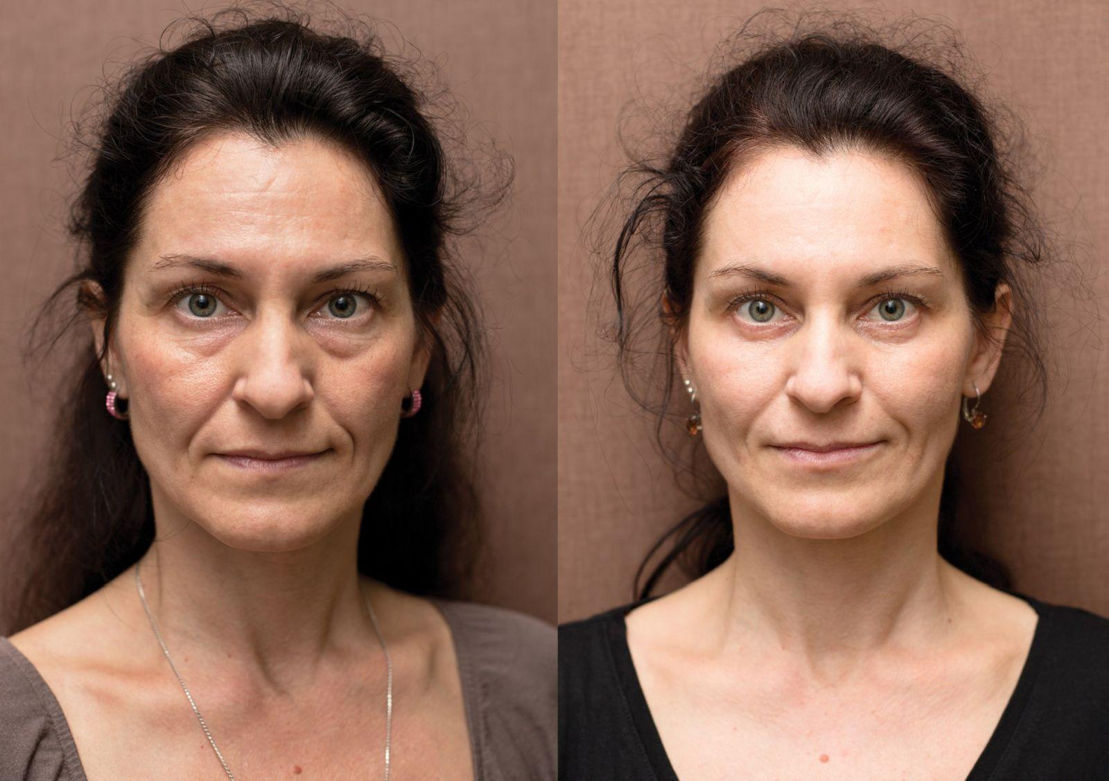 Anti-aging proměny: Botolutoxin, operace víček, Skinbooster, injekční výplně, zvětšení rtů