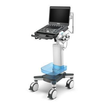 diagnostika žilních onemocnění - ultrazvukové vyšetření