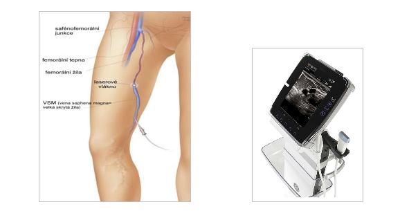 EVLA - endovenozní laserová ablace