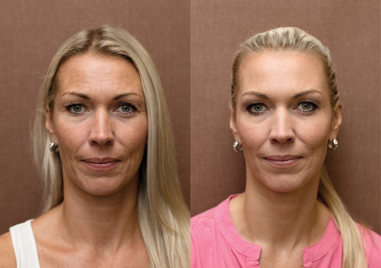 Anti-aging proměny: Plazmaterapie, chemický peeling, skinbooster, botulotoxin