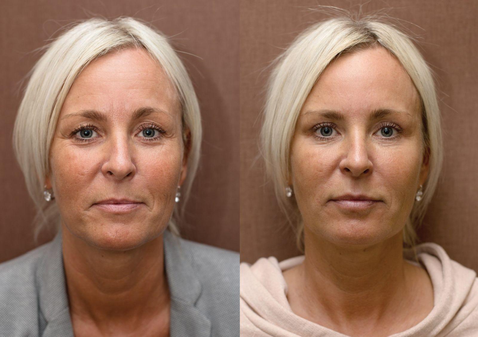 Anti-aging proměny: Plazmaterapie, injekční výplně, operace očních víček