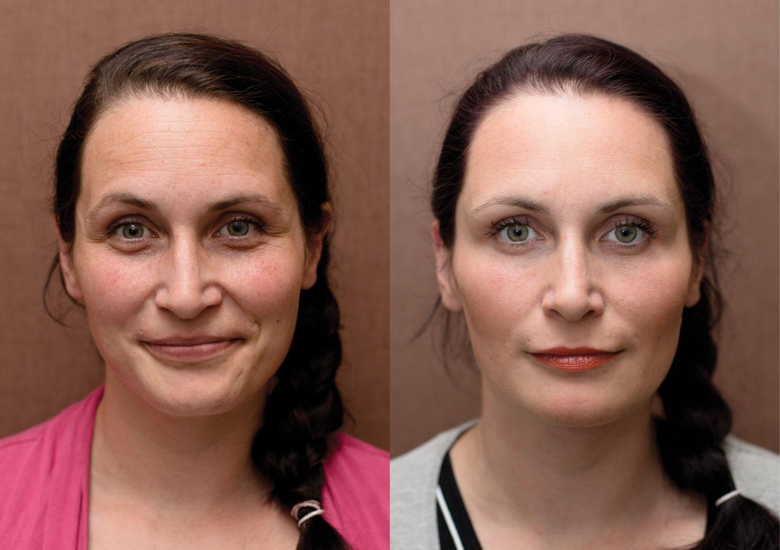 Anti-aging proměny: Mezoterapie očního okolí, plasmaterapie, výplň rtů