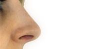 plastika nosu před/po