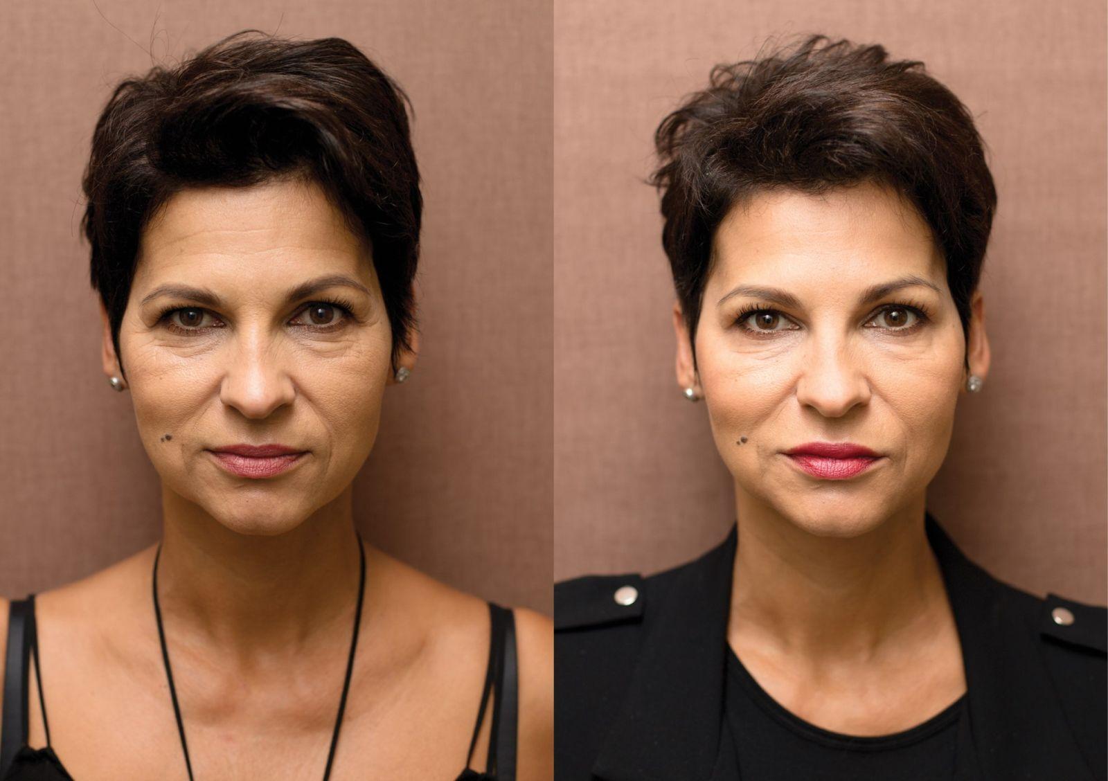 Anti-aging proměny: Skinbooster, botulotoxin, korekce obočí