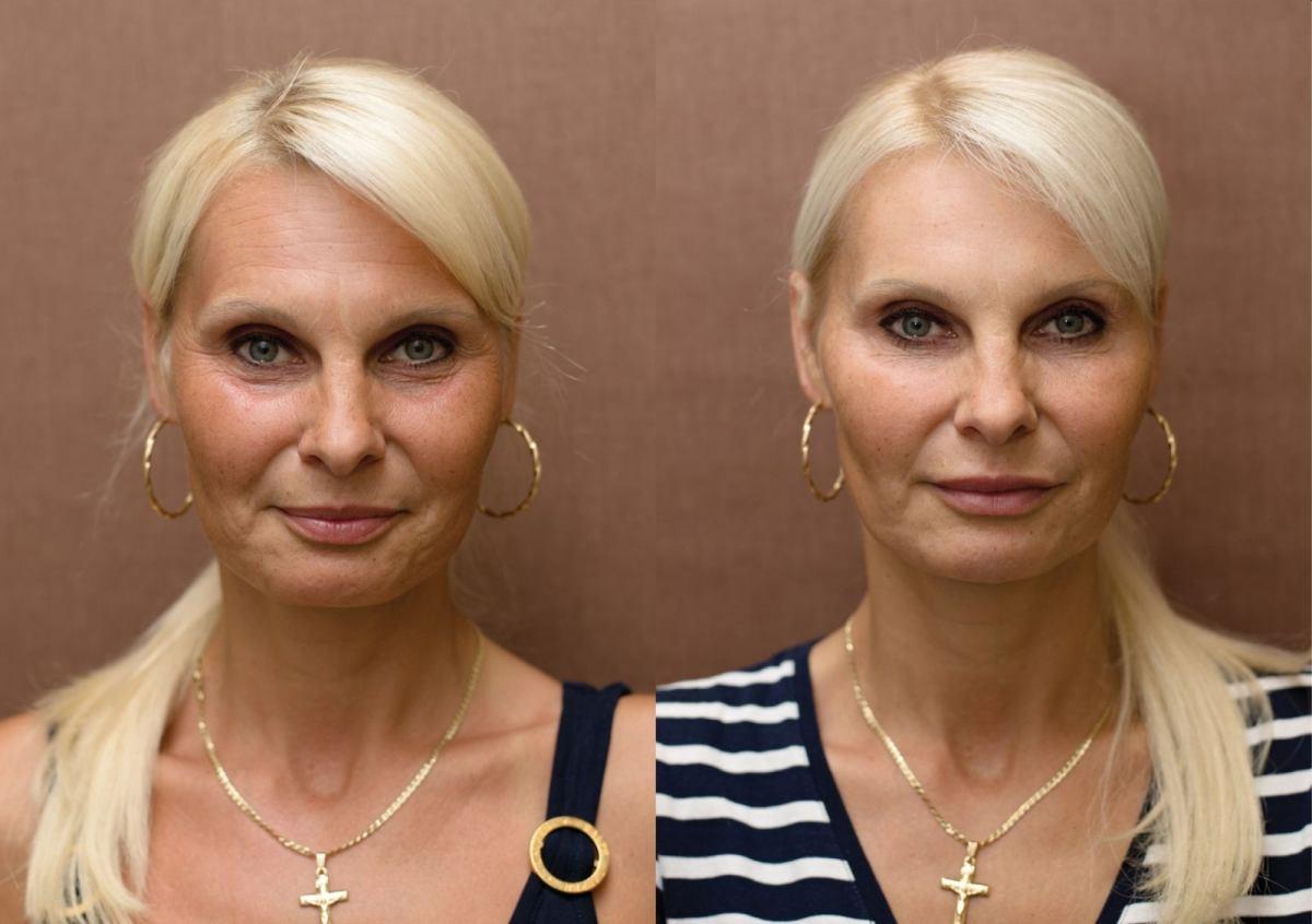 Anti-aging proměny: Výplně na bázi kyseliny hyaluronové - tekutý lifting