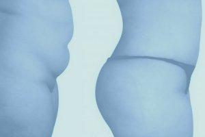 Abdominoplastika (Plastika břicha)