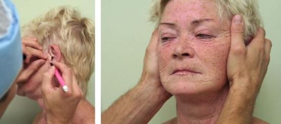 Facelifting foto před operací