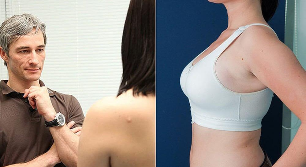 breast lift - consultation with a doctor