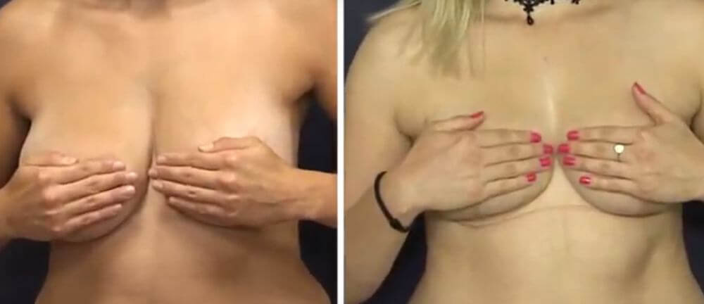 brustmodellierung vor/nach