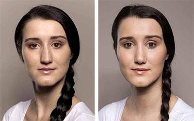 kombinovaná plastika nosu