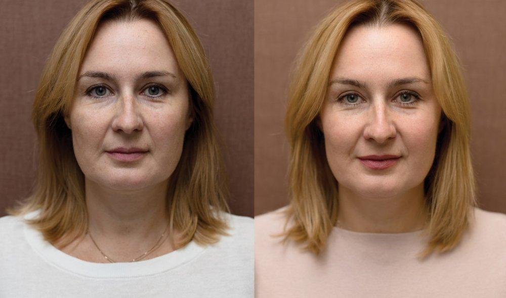 Frakční laser - anti-aging proměny Perfect Clinic dermatology.