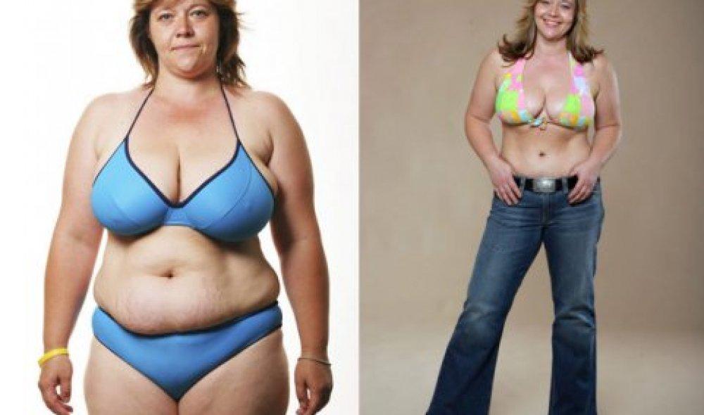 Abdominoplastika + liposukce + zmenšení prsou