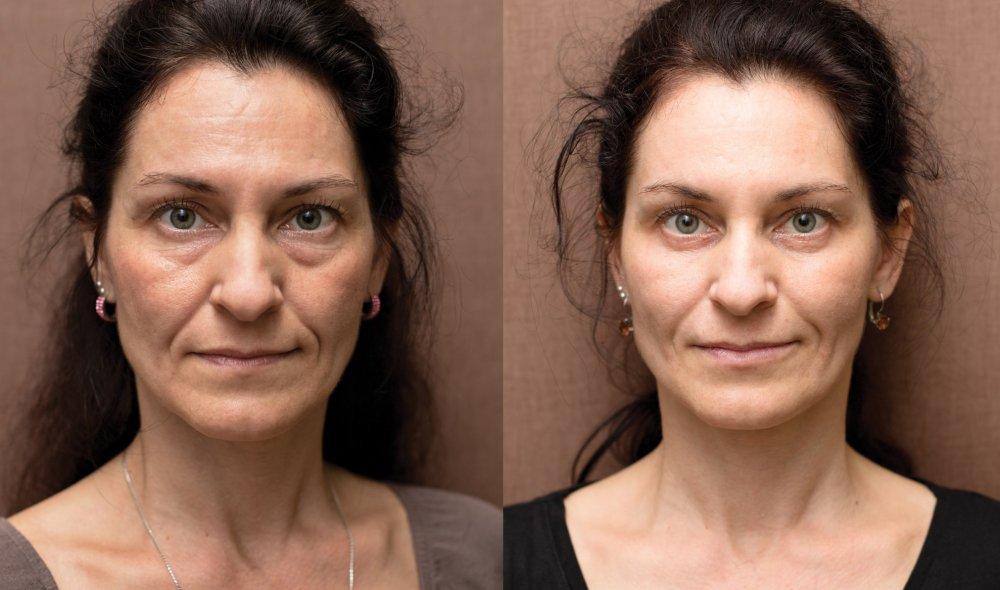 Botulotoxin, skinbooster, kruhy pod očima, operace víček