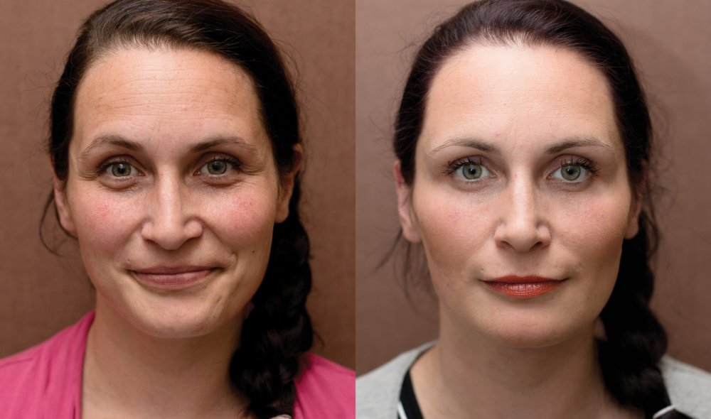 Plasmaterapie, mezoterapie očního okolí