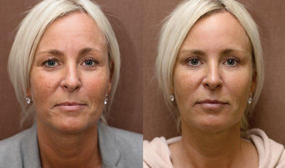 Plasmaterapie, injekční výplně, operace očních víček