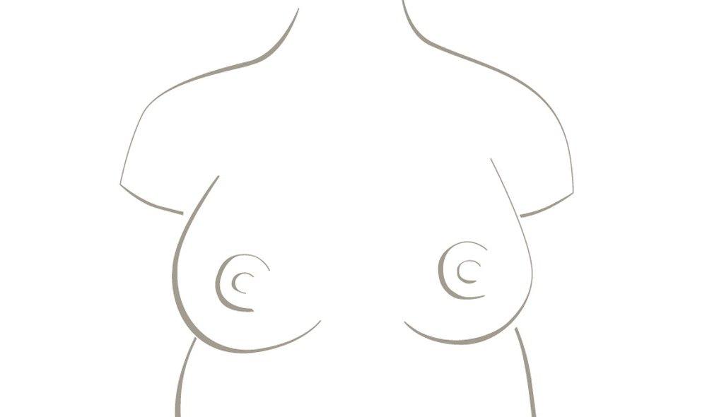 Alexandra - breast operation