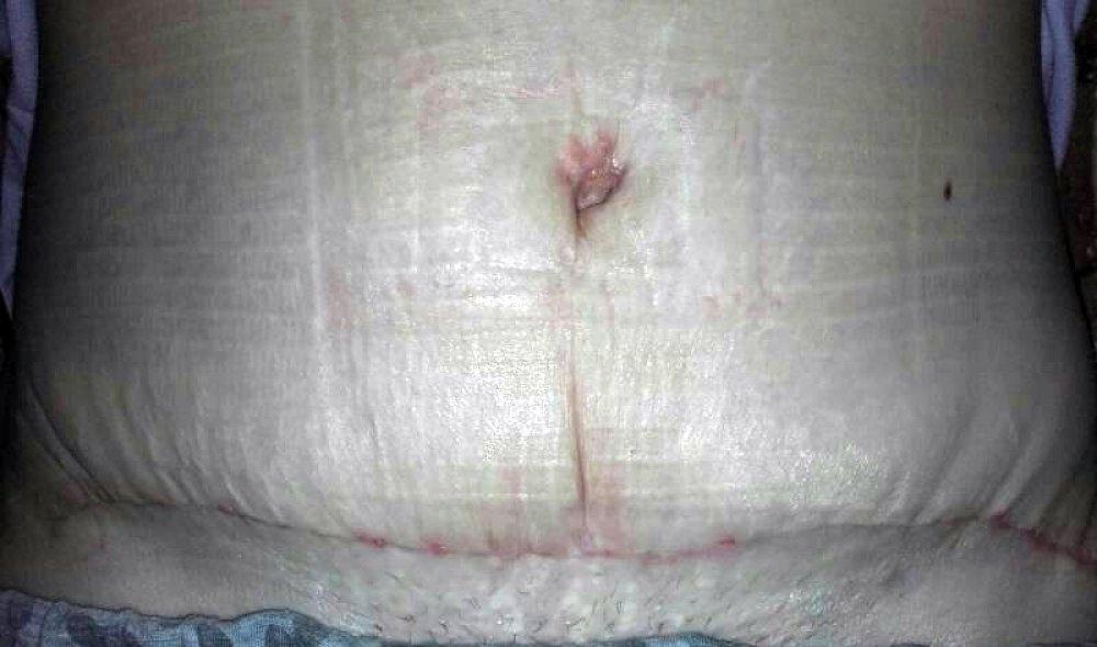 Abdominoplastika: Mám krásné ploché bříško