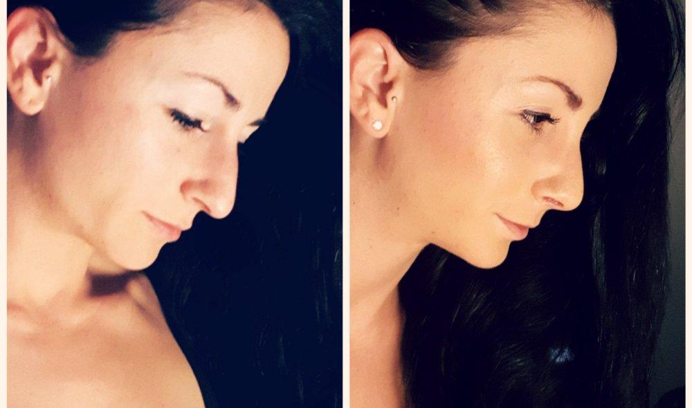 Janine Lewis und ihre Nasenkorrektur