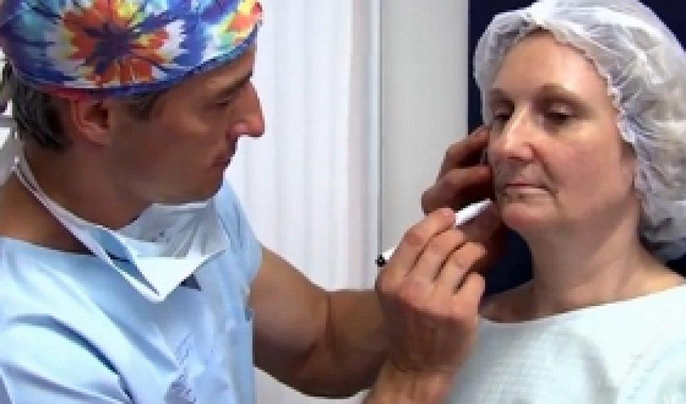 Vyplnění obličeje vlastním tukem