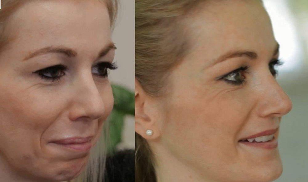 Profiloplastika - plastická operace, kterou prodělala i Angelina Jolie