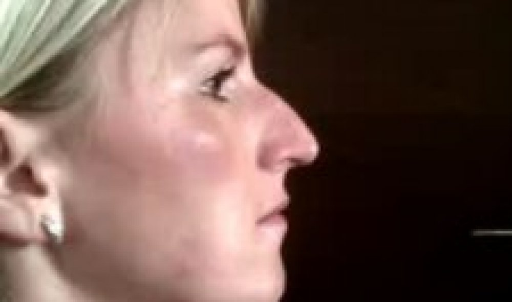 Operácia nosa