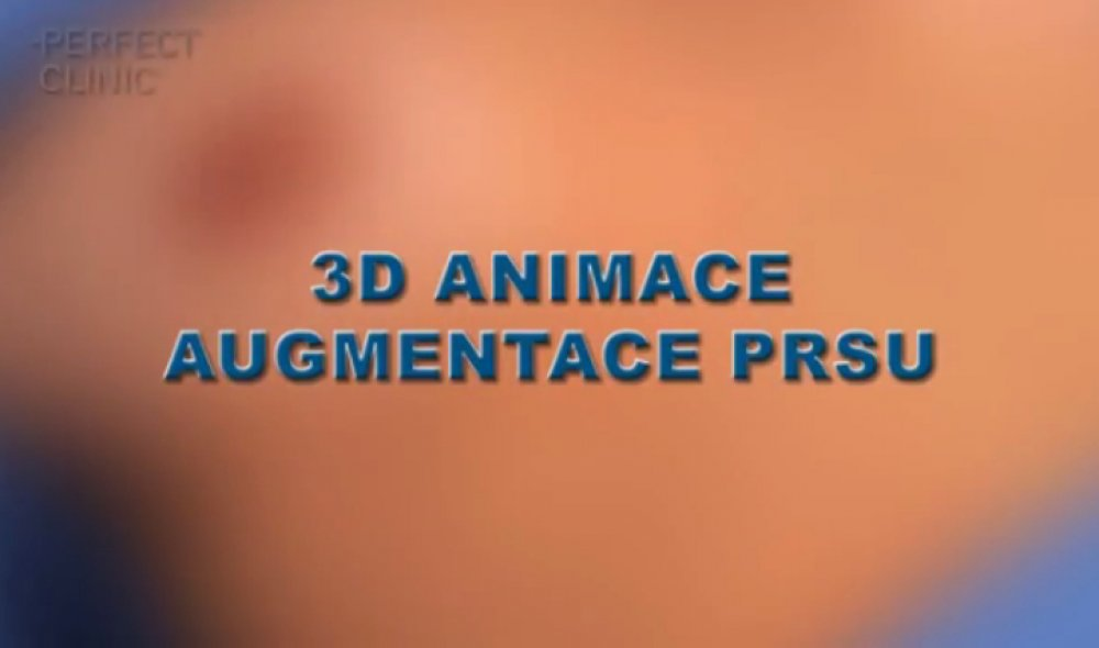 3D animation breast augmentation - step by step