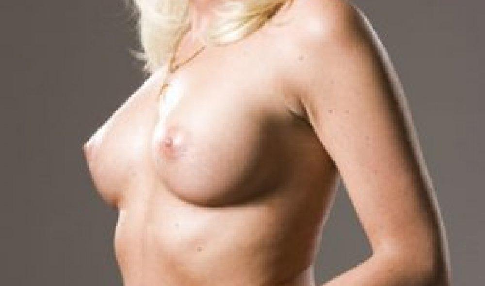 Jana - zvětšení prsou, MUDr. Roman Kufa