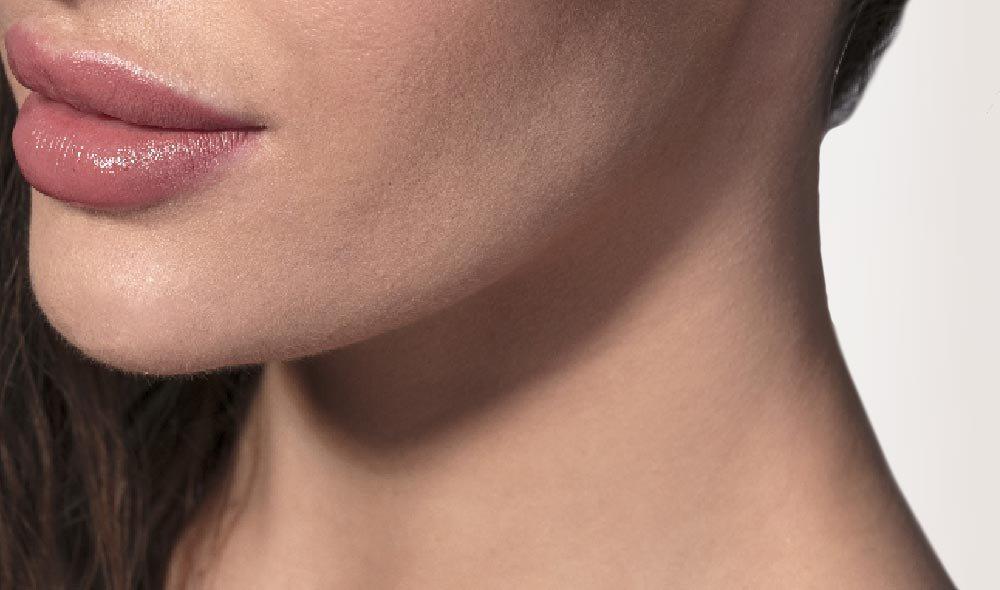Laserbehandlungen – Hautverjüngung mit dem fraktionierten CO2-Laser