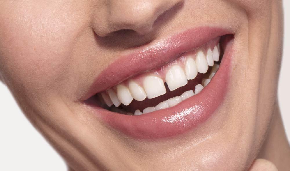 Úzké rty a vrásky kolem úst