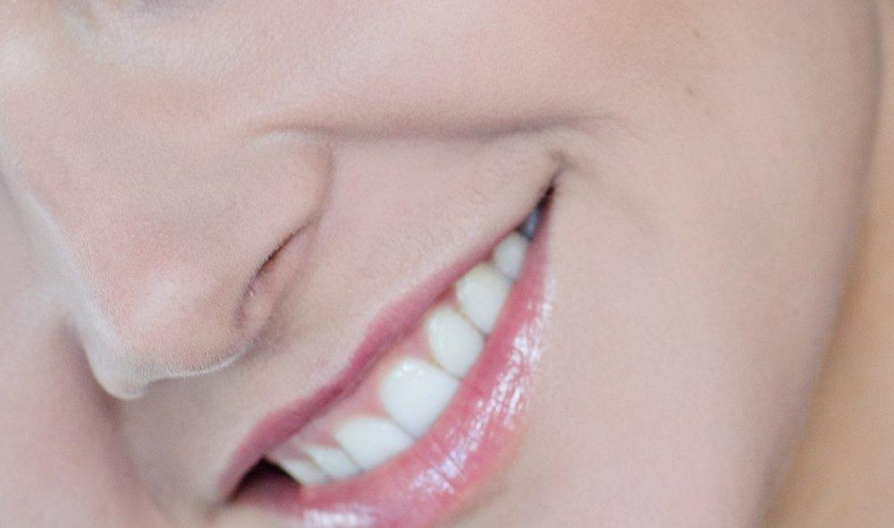 Филлинг препаратами гиалуроновой кислоты — жидкий лифтинг