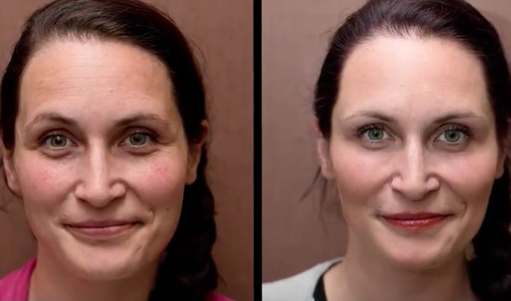 Anti-aging transformations: Plasma therapy and circles under the eyes