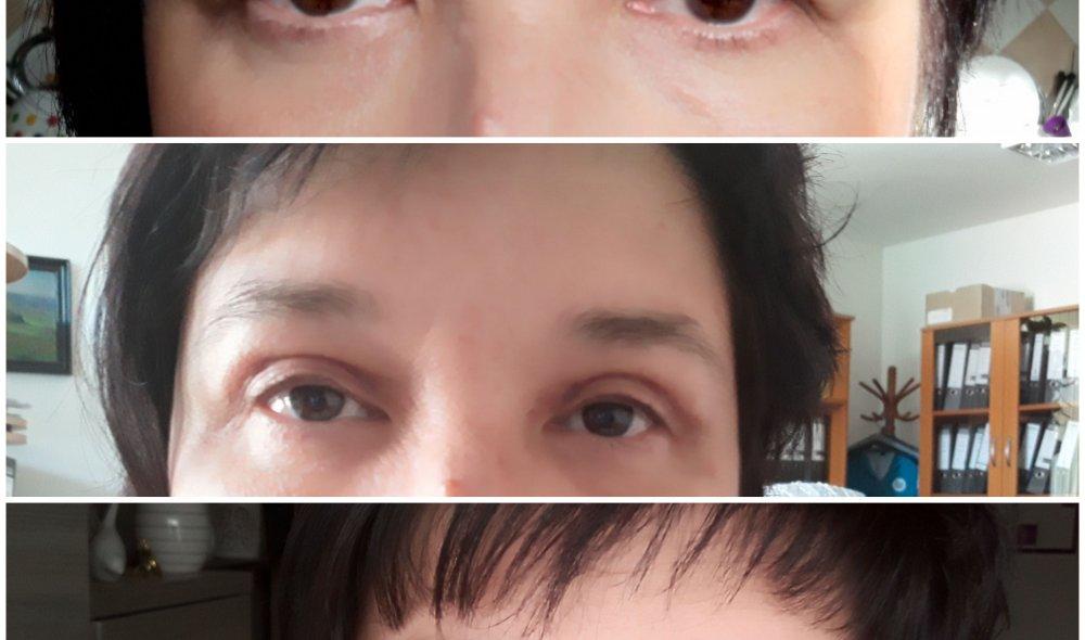 Operace očních horních víček, J. Hirňák