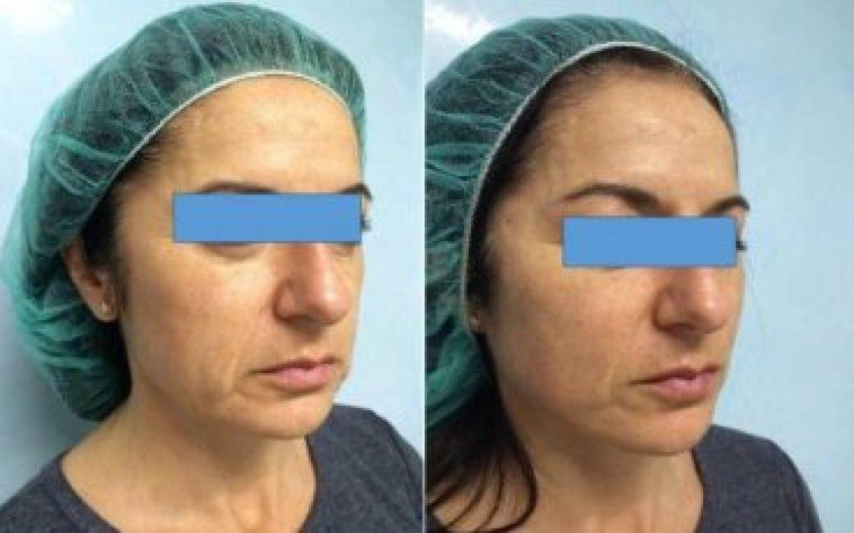 Lifting obličeje pomocí nití - současný hit plastické chirurgie