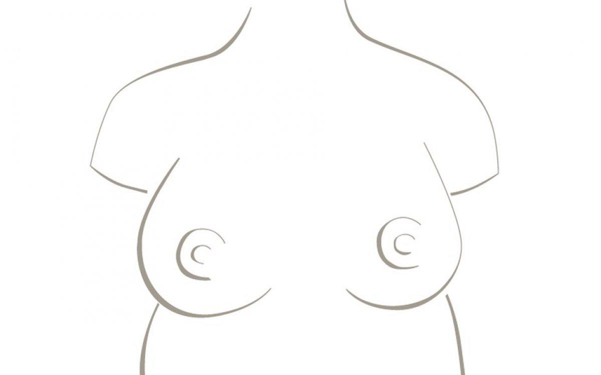 Operace prsou, MUDr. Roman Kufa